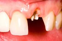 前歯の再植